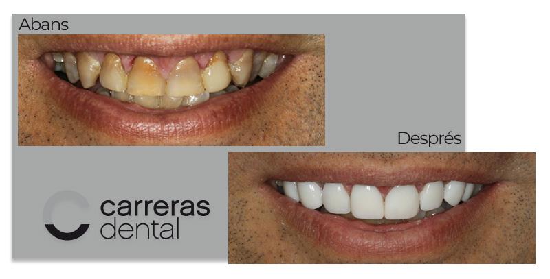Cas Clínic Estètica Dental - Carreras Dental - Terrassa