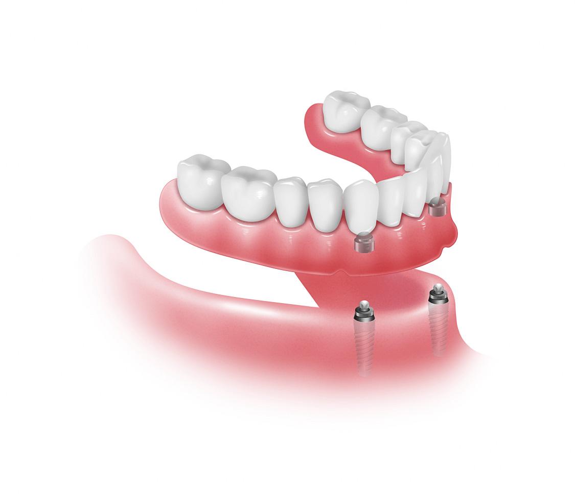 Pròtesis Fixes - Carreres Dental - Terrassa