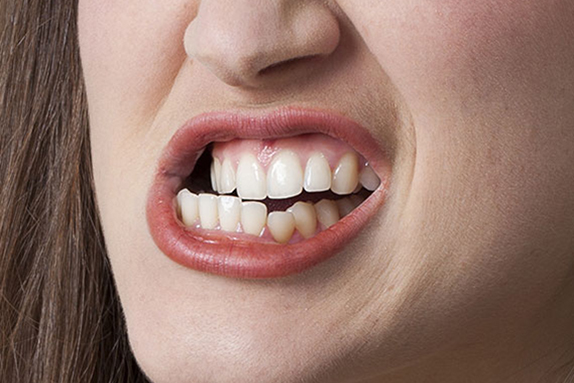 El bruxisme - Blog Carreras Dental