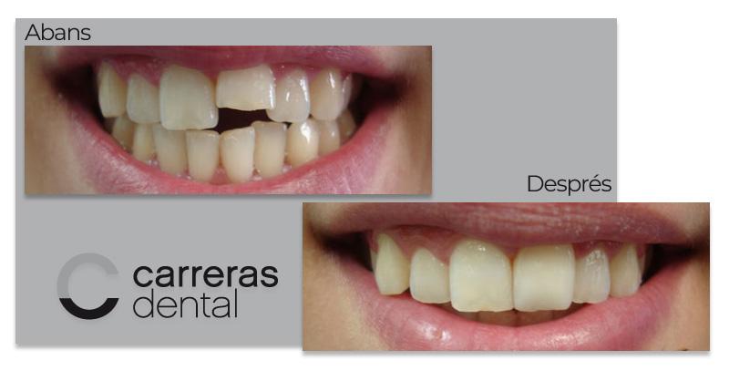 Cas Clínic Estètica Dental - Carreras Dental