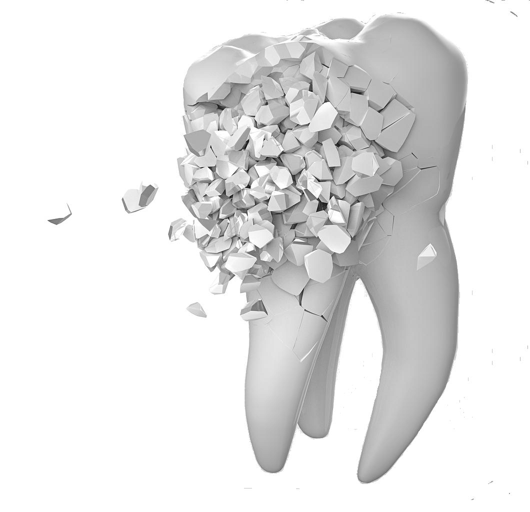 Embarassades - Carreres Dental - Terrassa