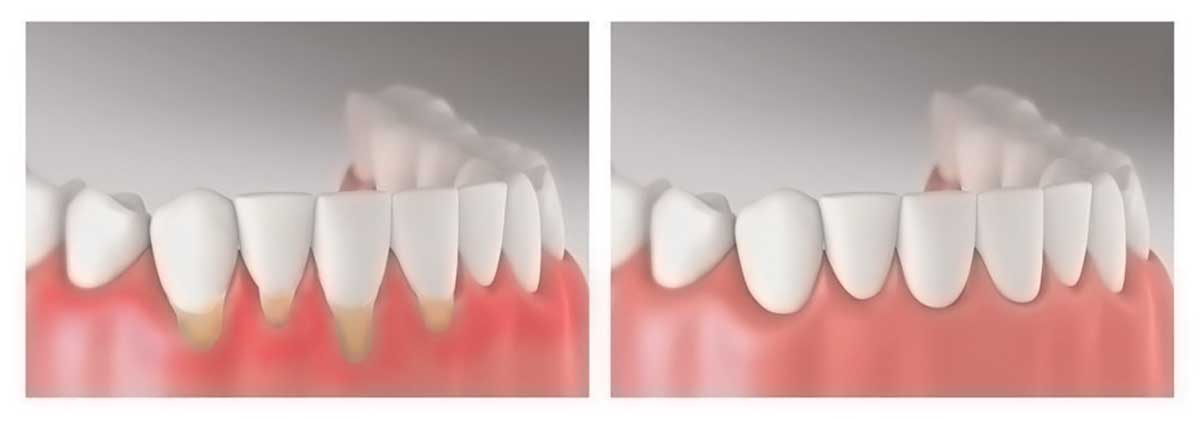 Periodoncia - Carreras Dental - Terrassa