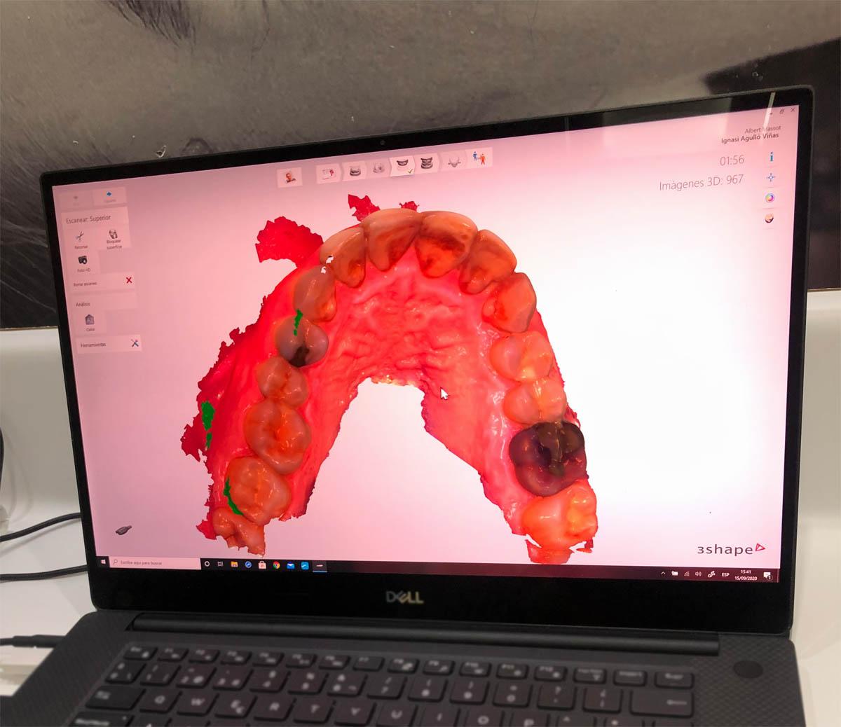 Carreras Dental - Escanejat bucal pròtesi dental